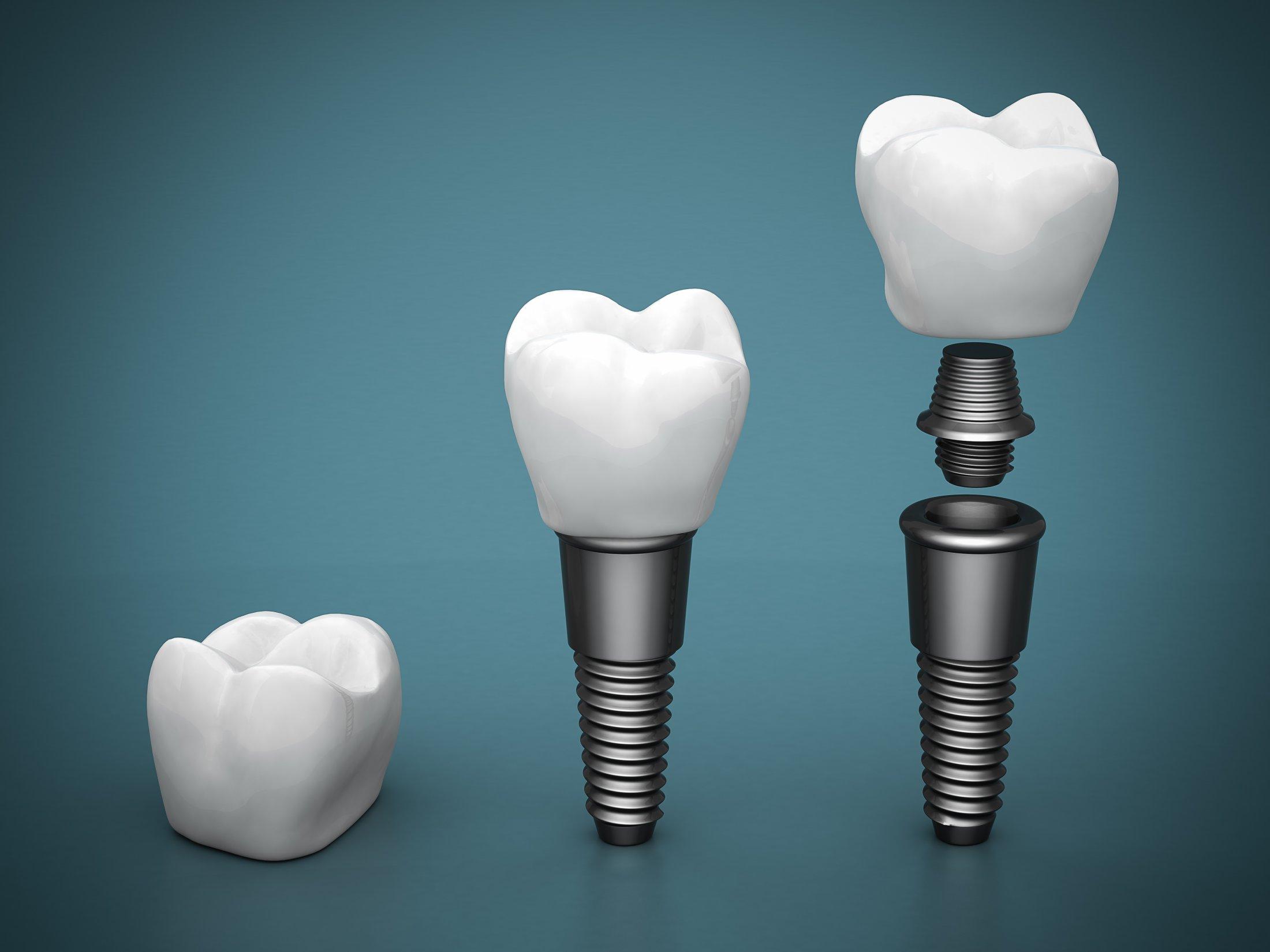 3-part-implant-2